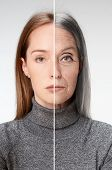 Comparison. Portrait Of Beautiful Woman With Problem And Clean Skin, Aging And Youth Concept, Beauty poster