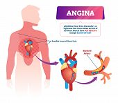 Angina Vector Illustration. Labeled Medical Chest Pain And Heart Problem Scheme. Educational Anatomi poster