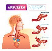 Aneurysm Vector Illustration. Labeled Medical Outward Bulging Vessel Scheme. Educational Anatomical  poster
