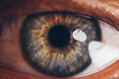 Macro Eyes With Bursting Red Blood Vessels. Eyeball Covered With Blood Close Up. Vision Problems. Wi poster