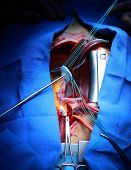 stock photo of open heart surgery  - surgery Valve implantation in the human heart - JPG