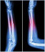 image of fracture  - Fracture shaft of ulnar bone  - JPG