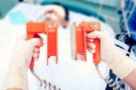 stock photo of icu  - defibrillator electrodes in hands - JPG