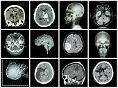 Постер, плакат: Collection Of Brain Disease