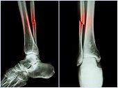image of fracture  - Fracture shaft of fibula bone  - JPG