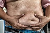 Постер, плакат: The Dangers Of Belly Fat Obese Man In Jeans Squeeze The Belly Fat Obese Man Is More Likely To Cl
