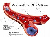 picture of hemoglobin  - medical illustration of the genetic modulation of sickle cell disease - JPG