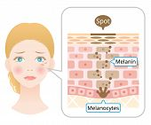 Human Skin Layer With Facial Spot Anatomy. Diagram Of Melanin And Melanocytes In Human Skin. Beauty  poster