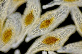 stock photo of microscopic  - Microscopic view of European terrestrial orchid seeds - JPG