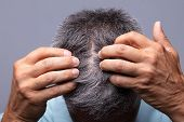 Mature Man With Dandruff Scratching His Head poster
