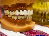 stock photo of prosthesis  - the teeth prosthesis model for oral education