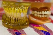 picture of prosthesis  - the teeth prosthesis model for oral education