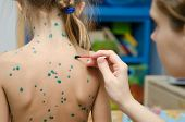 pic of lubricant  - Lubrication zelenkoj chickenpox sores on the back of a little girl - JPG