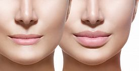 stock photo of big lips  - Before and after lip filler injections - JPG