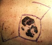picture of mitosis  - Malignant melanoma cancer of the skin preoperatory - JPG