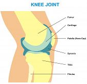 VECTOR - Knee Joint Cross Section - Showing the major parts which made the knee joint (Femur, Cartil