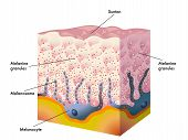 stock photo of sunburn  - medical illustration of the formation process of tanning - JPG