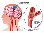 stock photo of atherosclerosis  - medical illustration of the effects of the TIA  - JPG