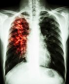 pic of tuberculosis  - film chest x - JPG