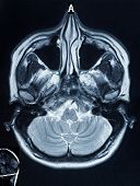 picture of mri  - Scull MRI of a woman - JPG