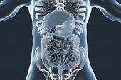Постер, плакат: Colorectal Cancer Awareness Medical Concept 3d Illustration Showing Cancerous Tumor Inside Large In