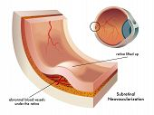 foto of hypertensive  - Illustration of the formation of a subretinal neovascularization of the eye - JPG