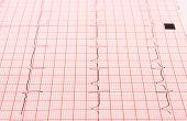 picture of electrocardiogram  - Electrocardiogram graph ekg heart rhythm medicine concept - JPG