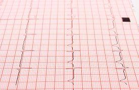 stock photo of ekg  - Electrocardiogram graph ekg heart rhythm medicine concept - JPG
