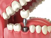 Tooth human implant. Dental concept. Human teeth or dentures. 3d illustration poster
