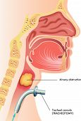 image of exhale  - medical illustration showing a surgical tracheotomy throat - JPG