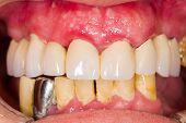 pic of gingivitis  - Ceramic dental bridge in person - JPG