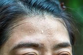 Close Up Sweat On Woman Fore Head. poster