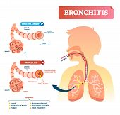 Bronchitis Vector Illustration. Lung Disease Diagnosis. Labeled Medical Diagram With Healthy Airway  poster