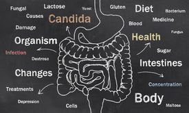 foto of intestines  - Words of Intestine Condition sketched on a Blackboard - JPG