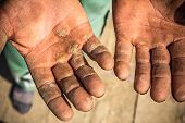 foto of callus  - Worker is showing his chapped hands dirty and injured palms - JPG