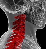 picture of vertebrae  - 3d rendered illustration of human spine  - JPG