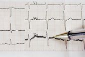 pic of ecg chart  - Excitedly heart - JPG