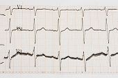 stock photo of ecg chart  - Excitedly heart - JPG