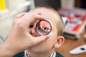 stock photo of infirmary  - ophthalmologist examines the eyes of a boy through a magnifying glass - JPG
