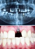 stock photo of gingivitis  - A macro shot of dental implant in the oral cavity and its Panoramic dental X - JPG