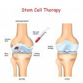 Stem Cell Therapy For Pain In Osteoarthritis, Knees And Hips Use The Healing Properties Of Your Own  poster