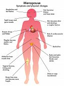 foto of flush  - medical illustration of symptoms and physical changes caused by menopause - JPG