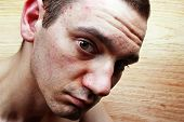 stock photo of pimples  - Acne pimples on the face of a young man