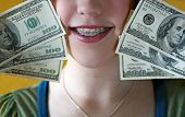 stock photo of overbite  - Image of a teen girl with braces holding 100 dollar bills beside her very  - JPG