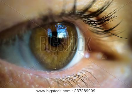 poster of Macro Image Of Human Eye With Contact Lens