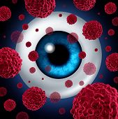 pic of tumor  - Eye cancer concept or intraocular cancers symbol as a human eyeball with cancerous cells spreading as a health care and medical icon for ocular tumor risk resulting in vision loss and blindness - JPG