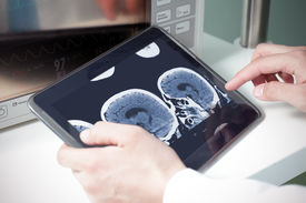 stock photo of cat-scan  - doctor examining a brain cat scan on a digital tablet - JPG