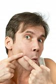 pic of pimples  - Men squeezing a pimple on white background - JPG
