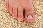 picture of big-foot  - Damaged toenail - JPG