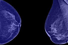 pic of mammogram  - Lateral mammogram of female breast - JPG
